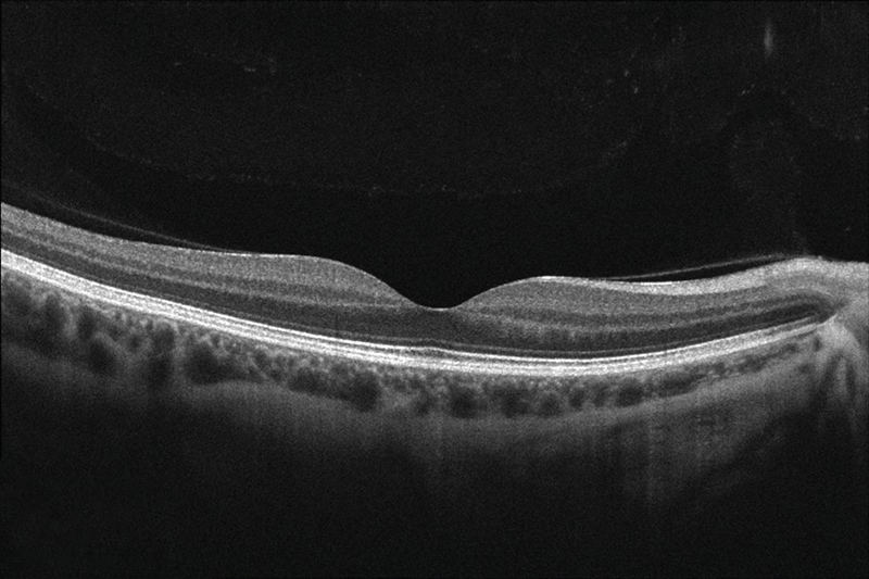 diagnostic_testing_ocular_coherence_tomography_image1