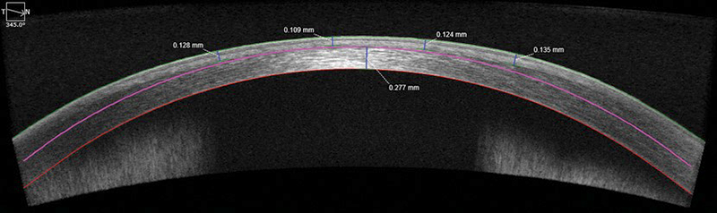 diagnostic_testing_ocular_coherence_tomography